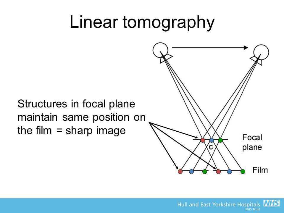 Linear tomography Structures in focal plane maintain same position on the film = sharp image