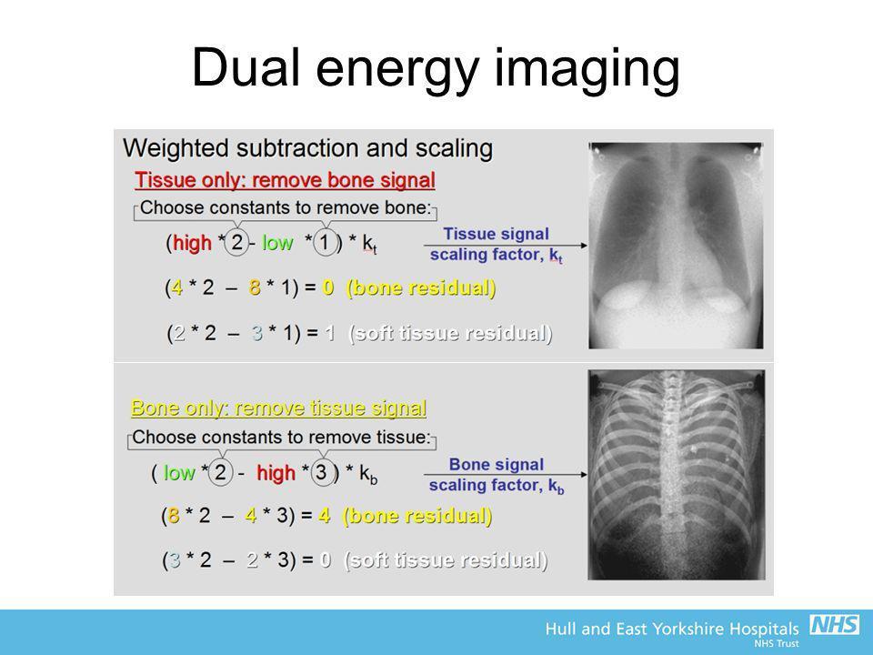 Dual energy imaging