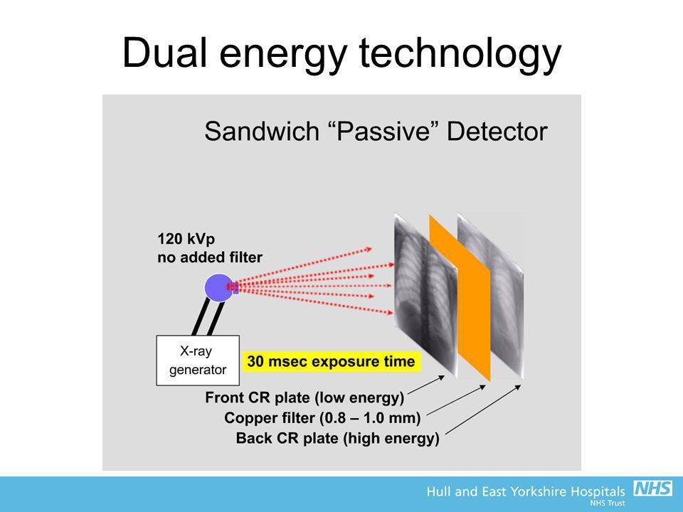 Dual energy technology