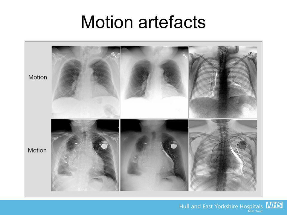 Motion artefacts