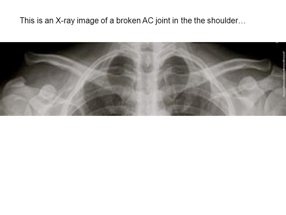This is an X-ray image of a broken AC joint in the the shoulder…