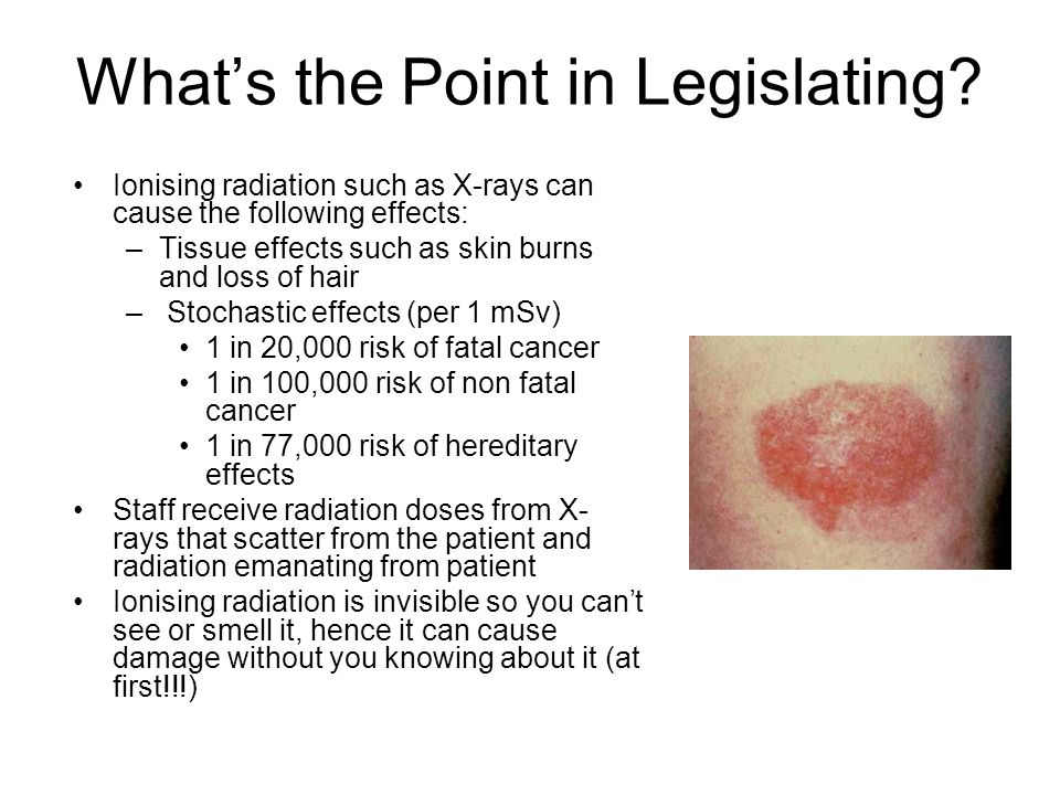 What's the Point in Legislating? Ionising radiation such as X-rays can cause the following effects: –Tissue effects such as skin burns and loss of hai