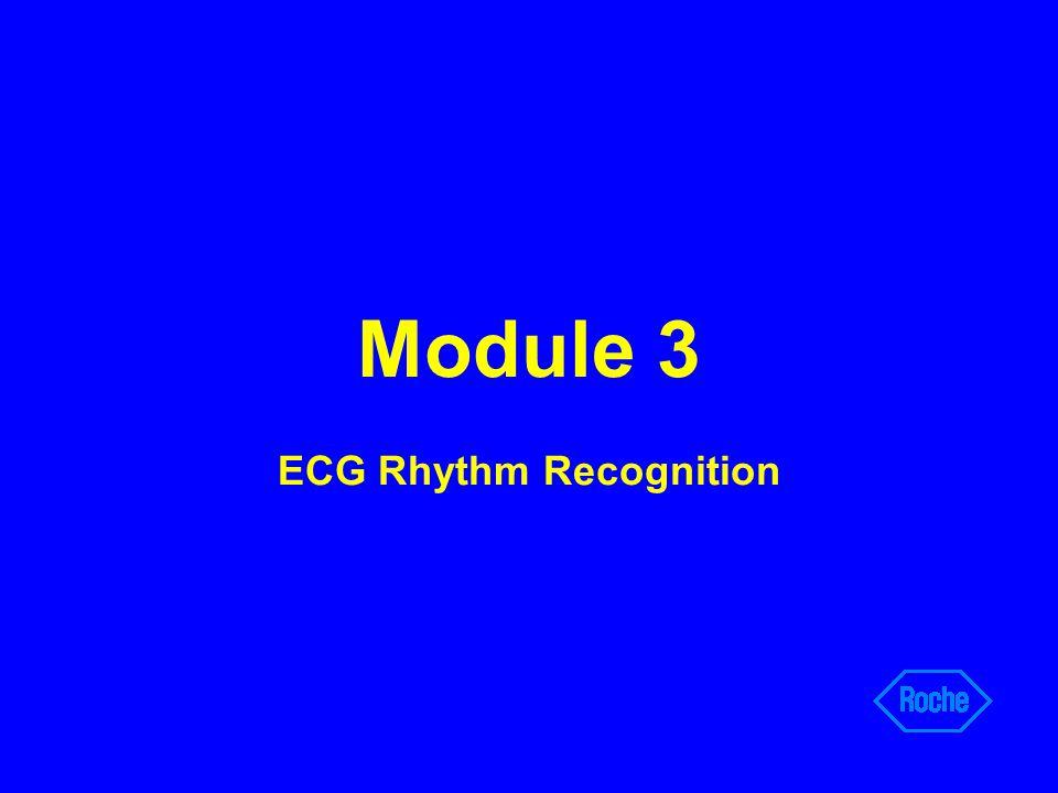 Module 3 ECG Rhythm Recognition
