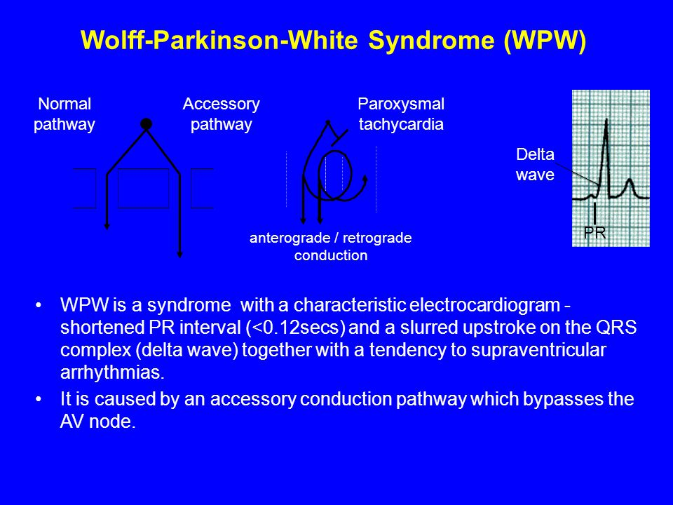 Wolff-Parkinson-White Syndrome (WPW) WPW is a syndrome with a characteristic electrocardiogram - shortened PR interval (<0.12secs) and a slurred upstr