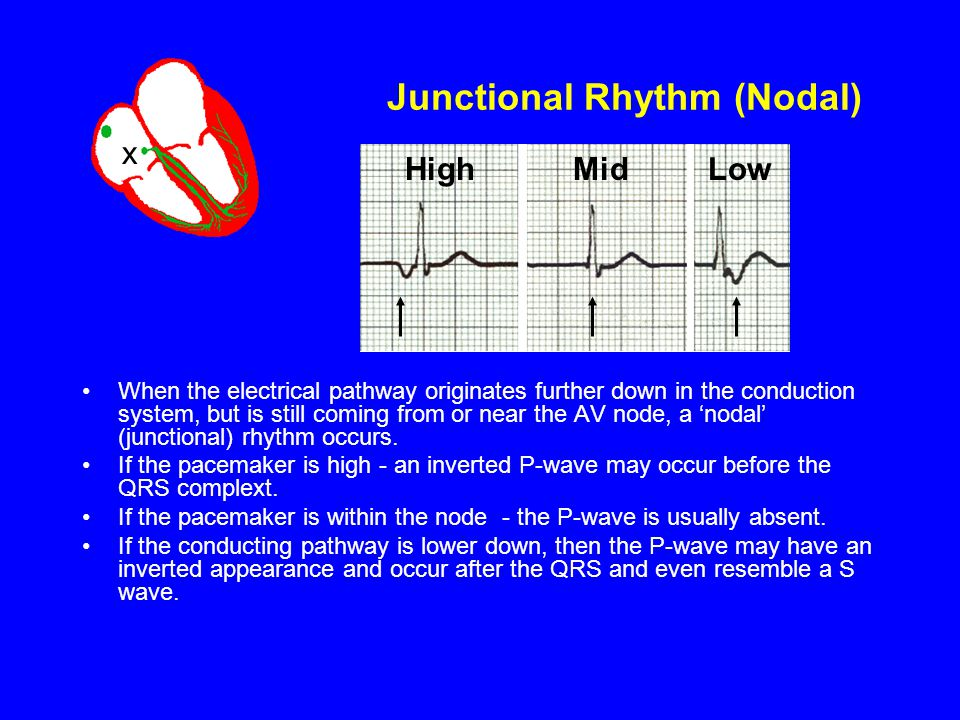 Junctional Rhythm (Nodal) When the electrical pathway originates further down in the conduction system, but is still coming from or near the AV node,