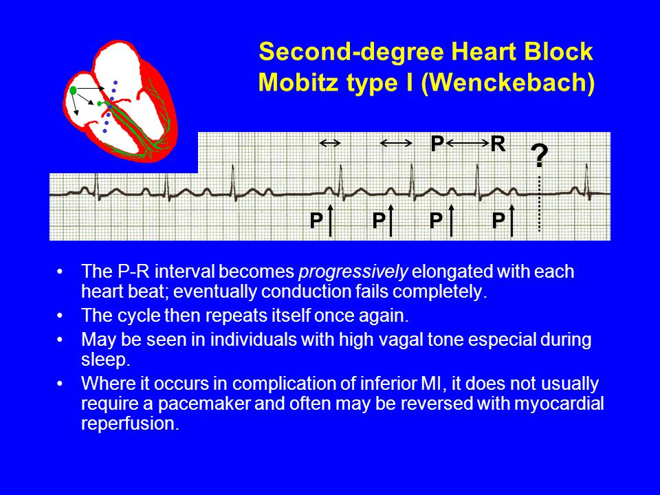 Second-degree Heart Block Mobitz type I (Wenckebach) The P-R interval becomes progressively elongated with each heart beat; eventually conduction fail