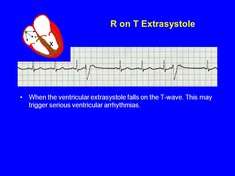 R on T Extrasystole When the ventricular extrasystole falls on the T-wave. This may trigger serious ventricular arrhythmias. x