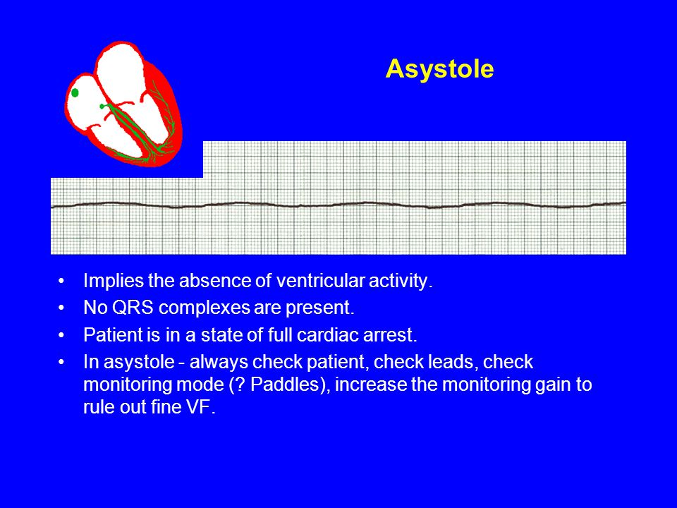 Asystole Implies the absence of ventricular activity. No QRS complexes are present. Patient is in a state of full cardiac arrest. In asystole - always