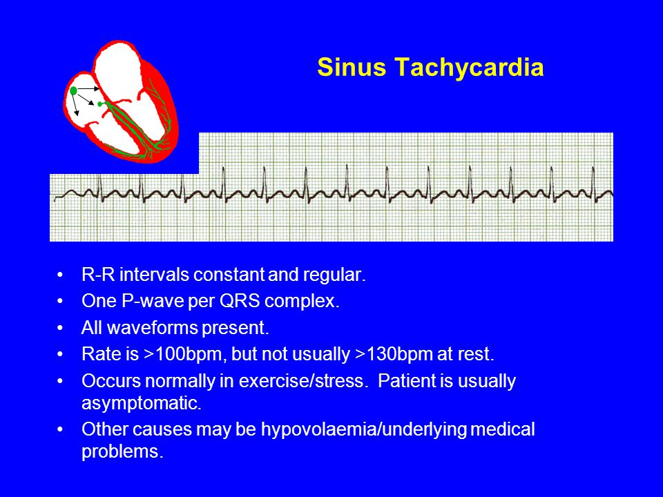Sinus Tachycardia R-R intervals constant and regular. One P-wave per QRS complex. All waveforms present. Rate is >100bpm, but not usually >130bpm at r