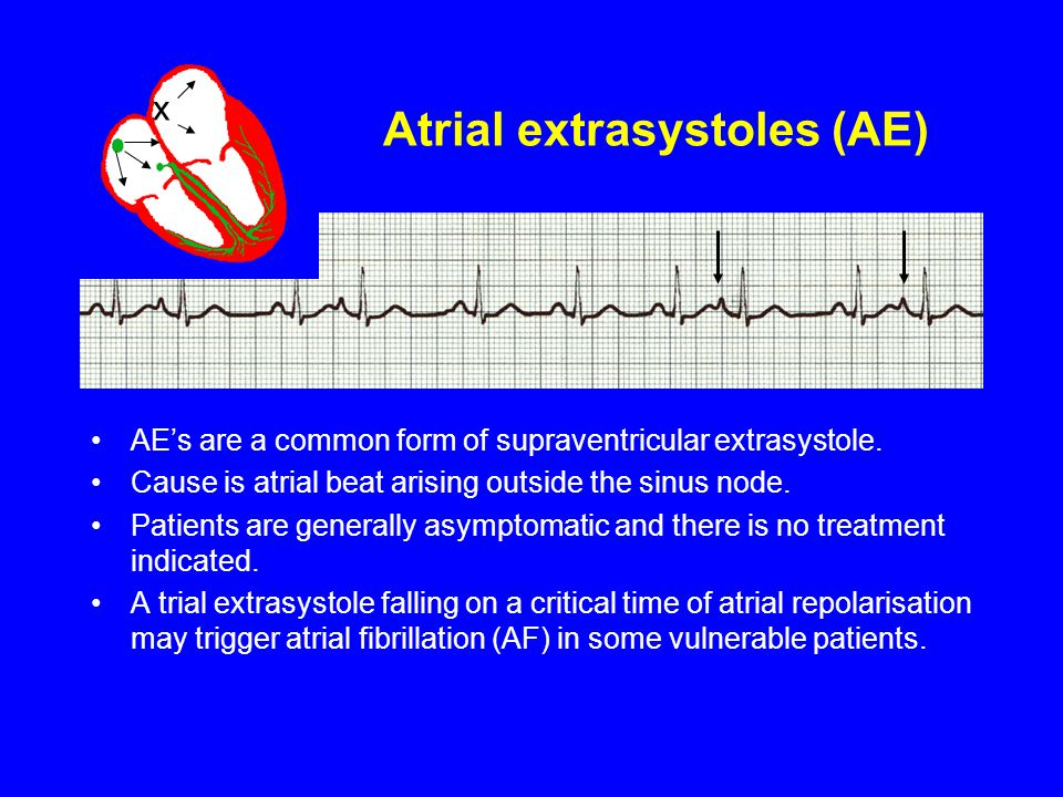 Atrial extrasystoles (AE) AE's are a common form of supraventricular extrasystole. Cause is atrial beat arising outside the sinus node. Patients are g