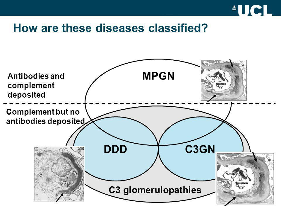 DDD C3GN MPGN Antibodies and complement deposited Complement but no antibodies deposited How are these diseases classified.