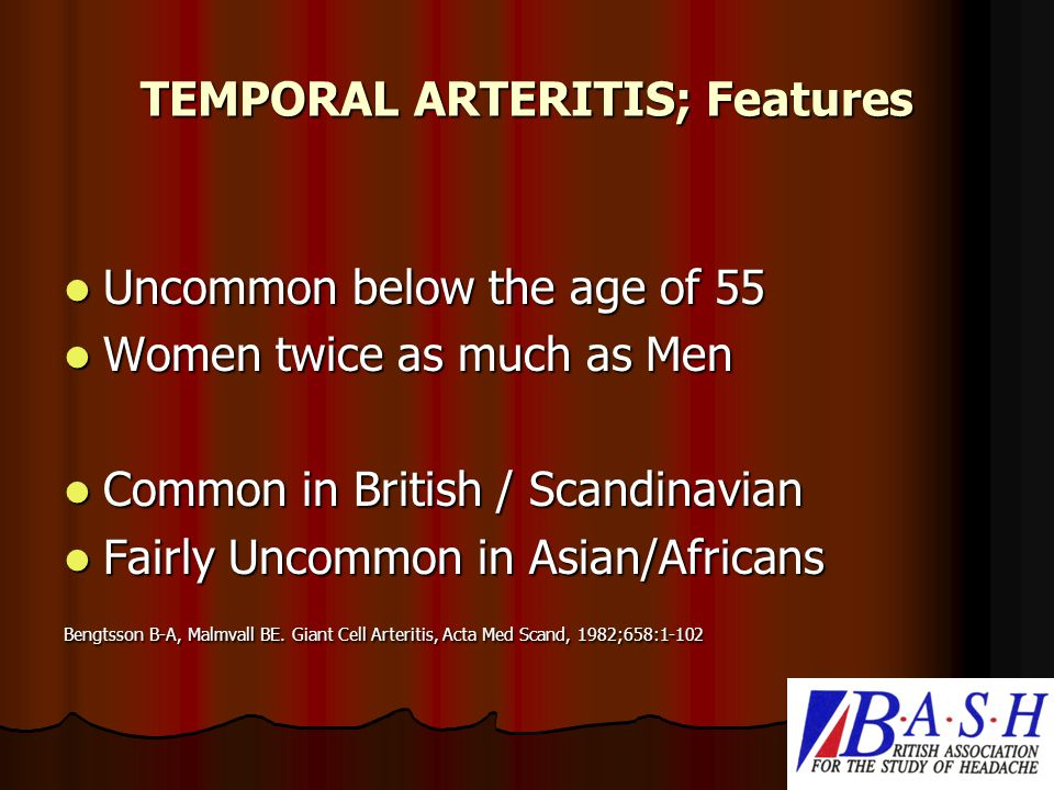 TEMPORAL ARTERITIS; Features Uncommon below the age of 55 Uncommon below the age of 55 Women twice as much as Men Women twice as much as Men Common in British / Scandinavian Common in British / Scandinavian Fairly Uncommon in Asian/Africans Fairly Uncommon in Asian/Africans Bengtsson B-A, Malmvall BE.