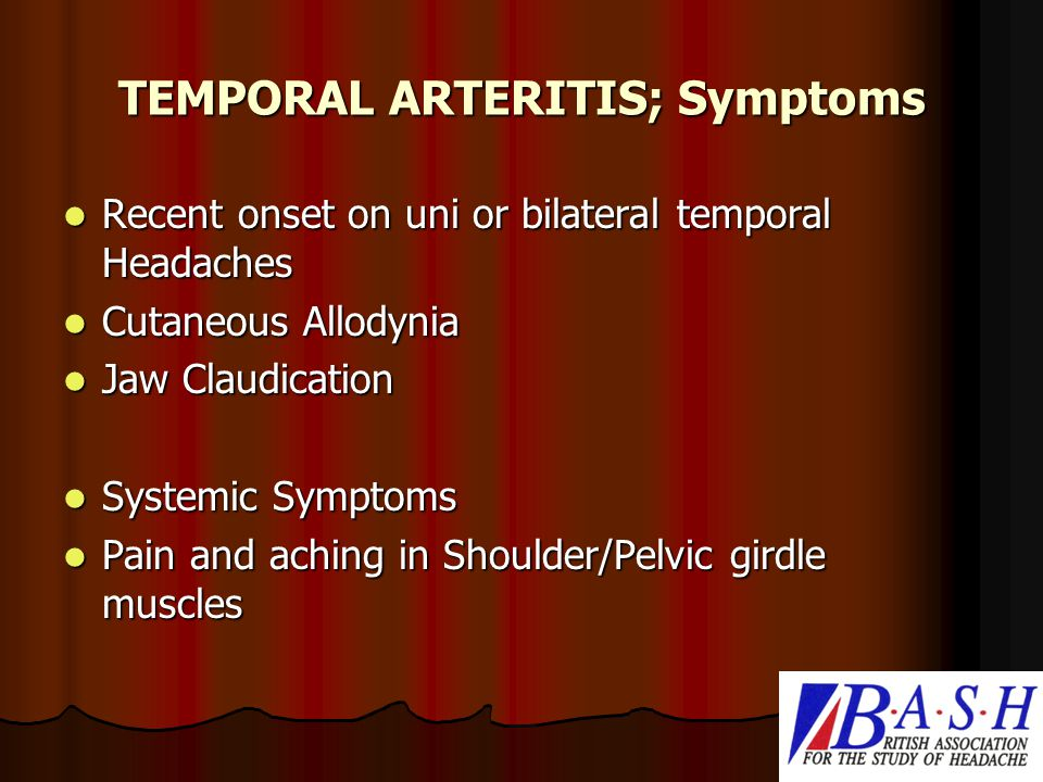 TEMPORAL ARTERITIS; Symptoms Recent onset on uni or bilateral temporal Headaches Recent onset on uni or bilateral temporal Headaches Cutaneous Allodynia Cutaneous Allodynia Jaw Claudication Jaw Claudication Systemic Symptoms Systemic Symptoms Pain and aching in Shoulder/Pelvic girdle muscles Pain and aching in Shoulder/Pelvic girdle muscles
