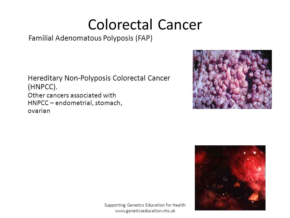 Colorectal Cancer Familial Adenomatous Polyposis (FAP) Hereditary Non-Polyposis Colorectal Cancer (HNPCC). Other cancers associated with HNPCC – endom