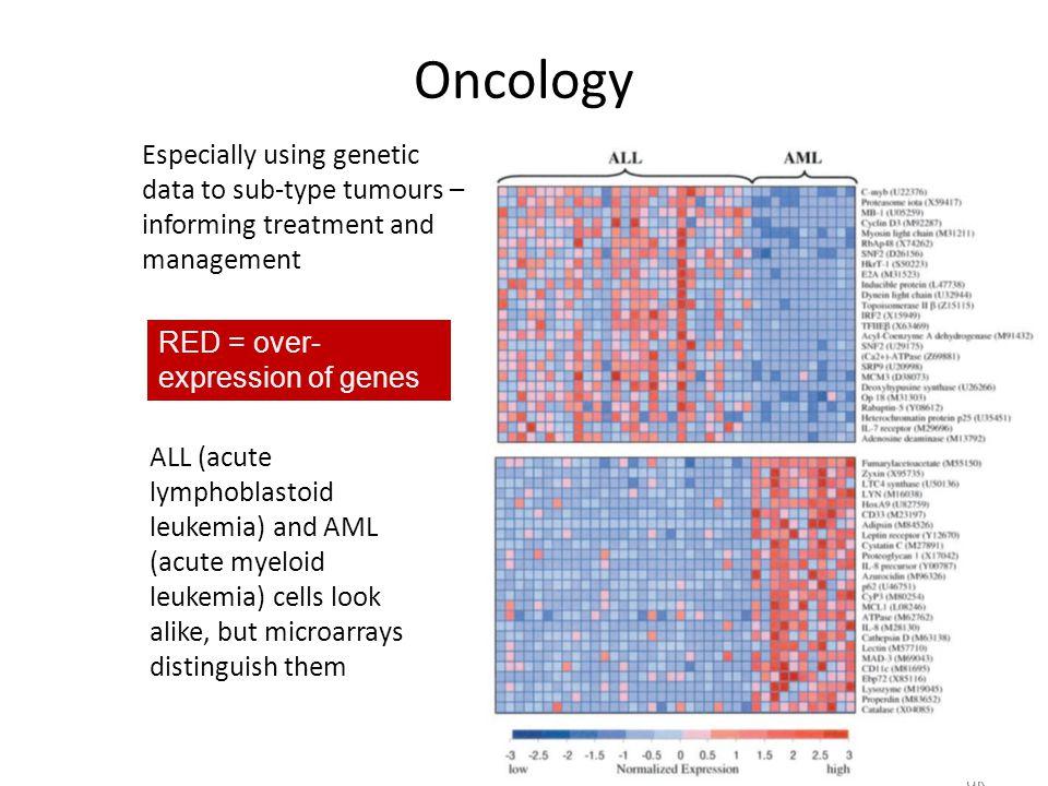 Supporting Genetics Education for Health www.geneticseducation.nhs. uk ALL (acute lymphoblastoid leukemia) and AML (acute myeloid leukemia) cells look
