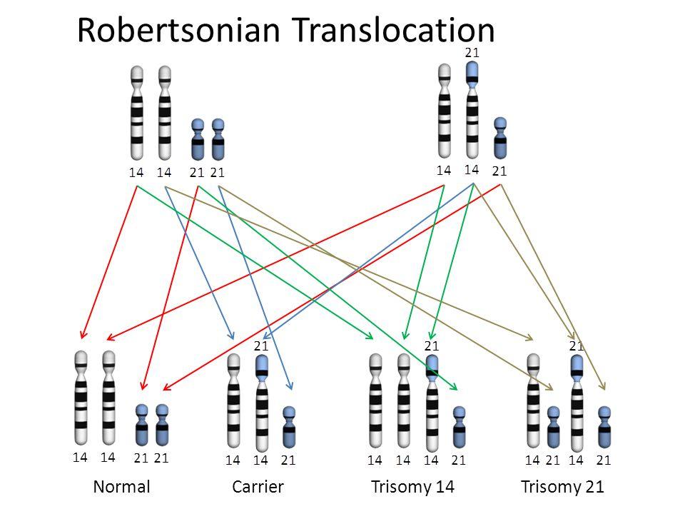 NormalCarrierTrisomy 14Trisomy 21 Robertsonian Translocation