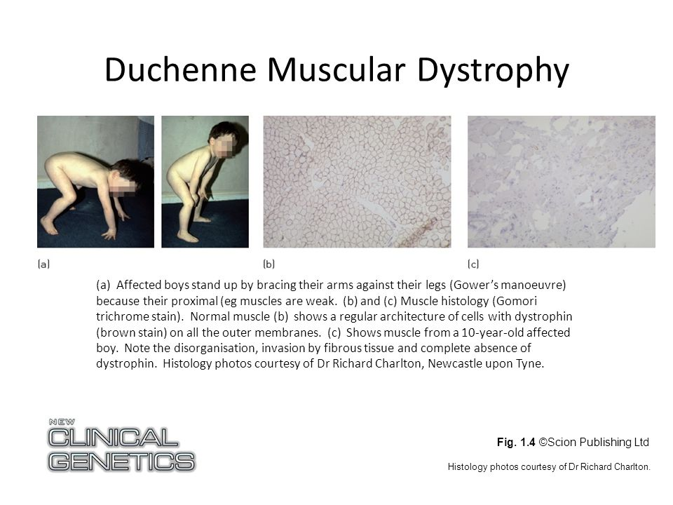 Duchenne Muscular Dystrophy Fig.