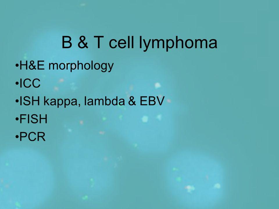 B & T cell lymphoma H&E morphology ICC ISH kappa, lambda & EBV FISH PCR