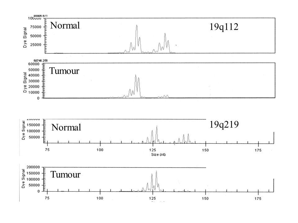 19q112 Normal Tumour 19q219 Normal Tumour