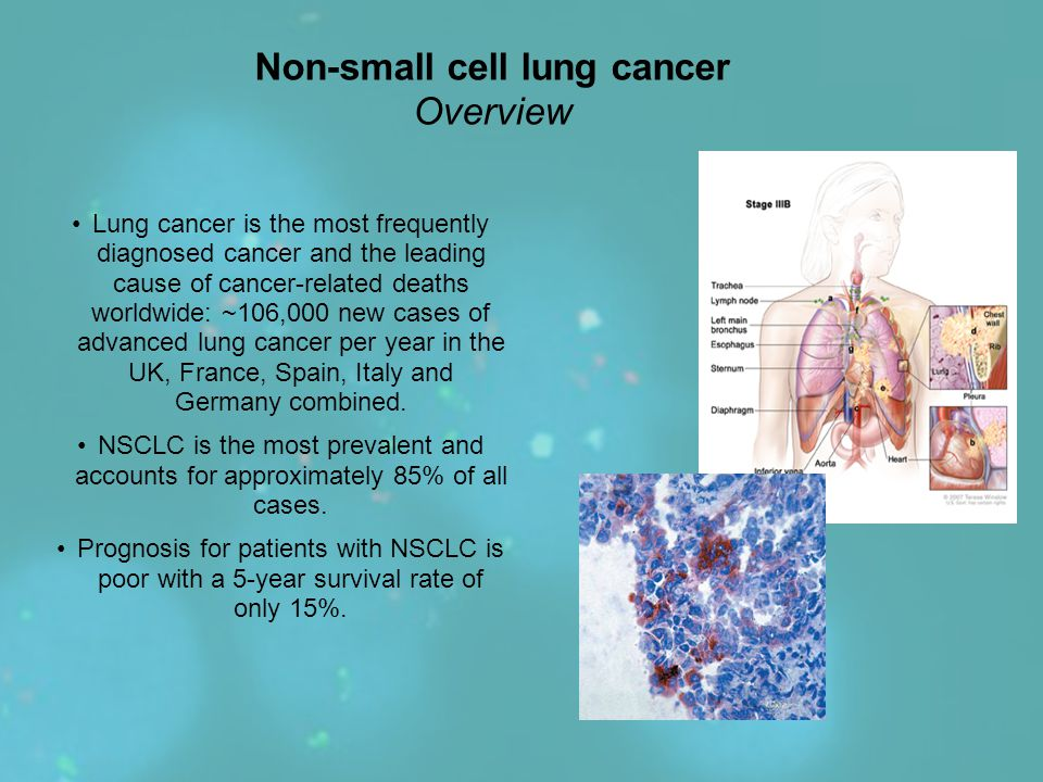 Non-small cell lung cancer Overview Lung cancer is the most frequently diagnosed cancer and the leading cause of cancer-related deaths worldwide: ~106