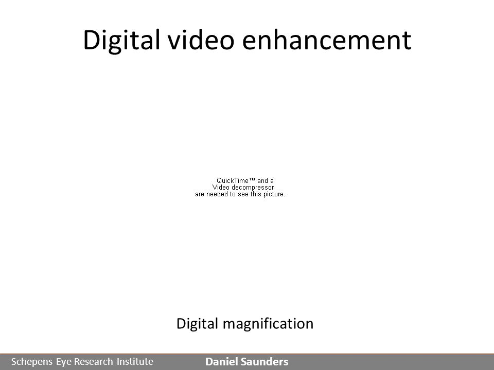 Schepens Eye Research Institute Digital video enhancement Daniel Saunders Digital magnification