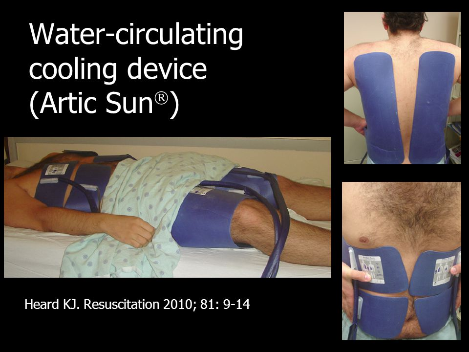 Water-circulating cooling device (Artic Sun  ) Heard KJ. Resuscitation 2010; 81: 9-14