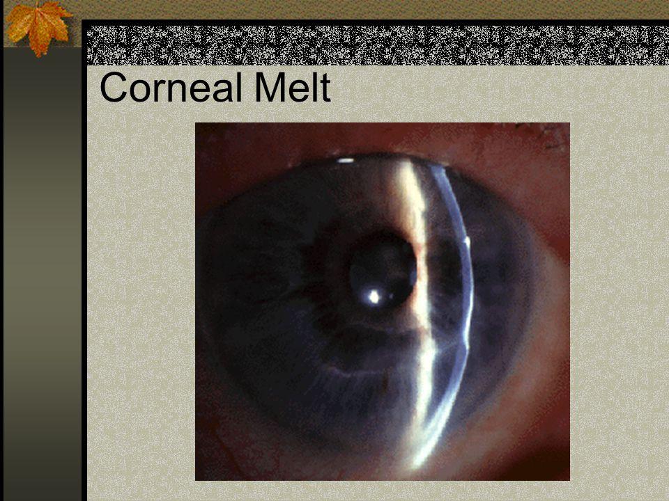 Corneal Melt