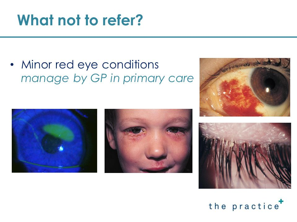 What not to refer Minor red eye conditions manage by GP in primary care