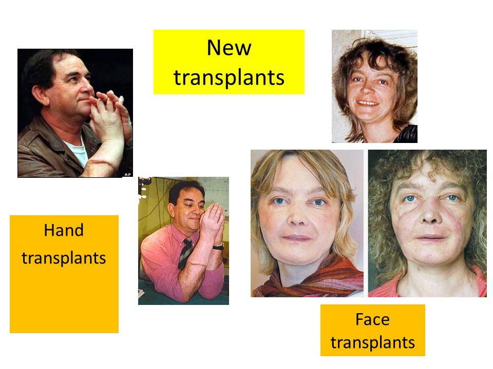 Hand transplants Face transplants New transplants