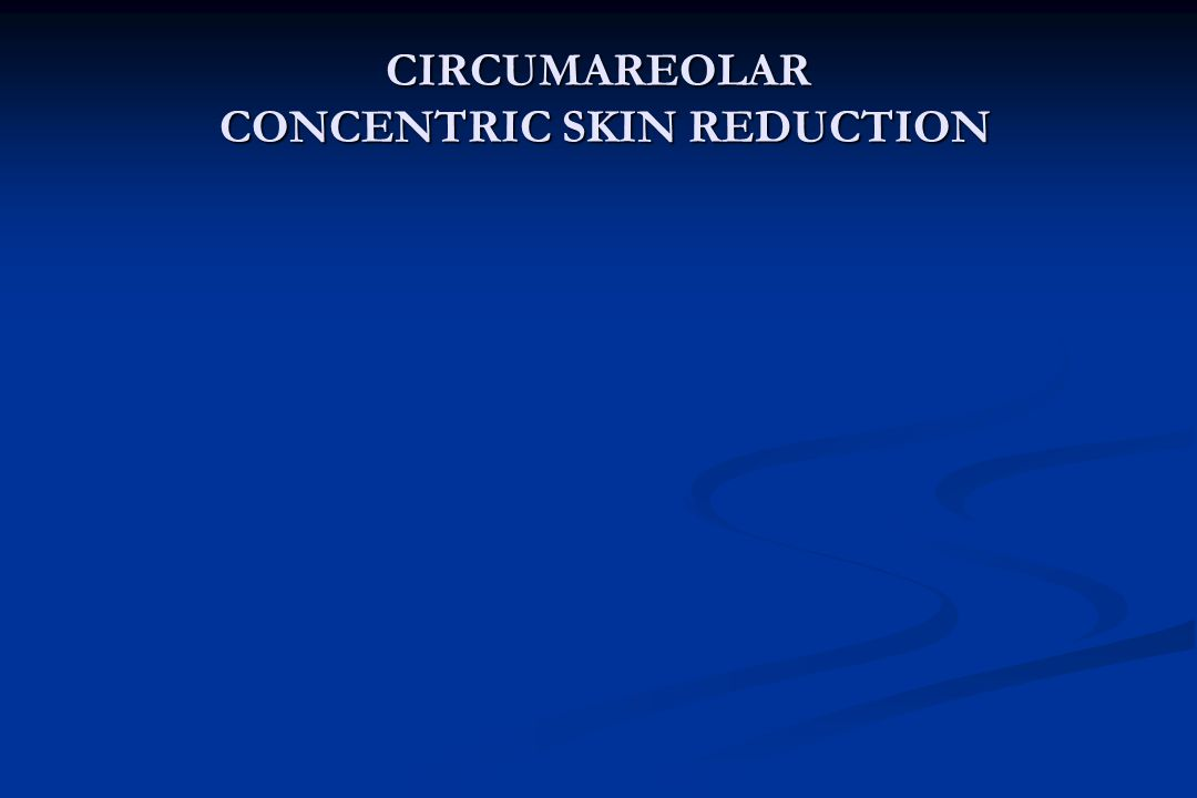 CIRCUMAREOLAR CONCENTRIC SKIN REDUCTION