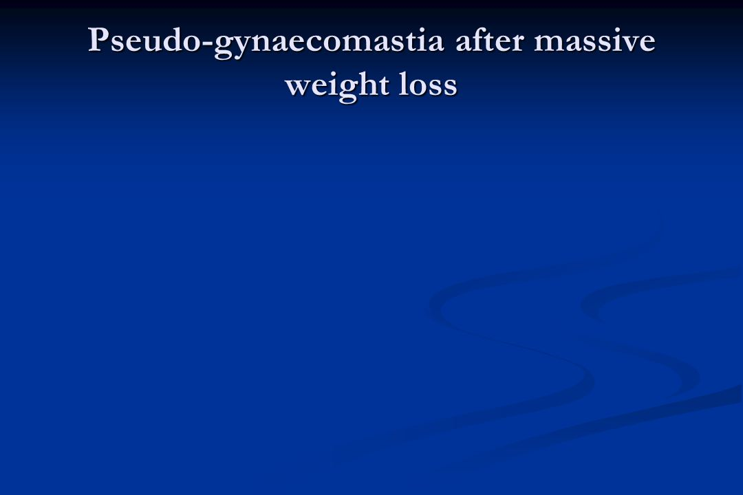Pseudo-gynaecomastia after massive weight loss