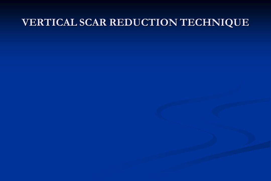 VERTICAL SCAR REDUCTION TECHNIQUE