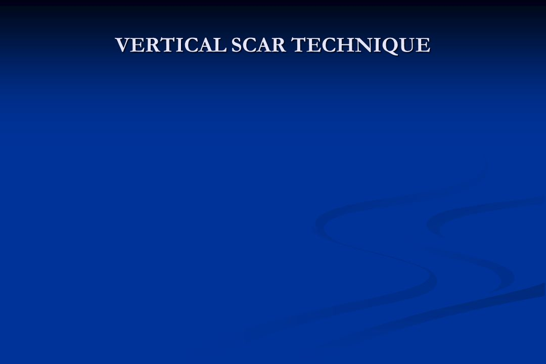 VERTICAL SCAR TECHNIQUE