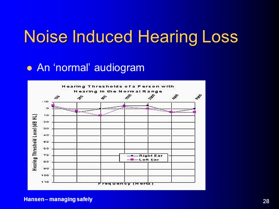 Hansen – managing safely 29 Noise Induced Hearing Loss An audiogram showing the classic 'dip' in hearing performance –Characterised by a loss of consonant discrimination –Consonant sounds such as f, s, t, d, sh, and k are essential to the intelligibility of speech