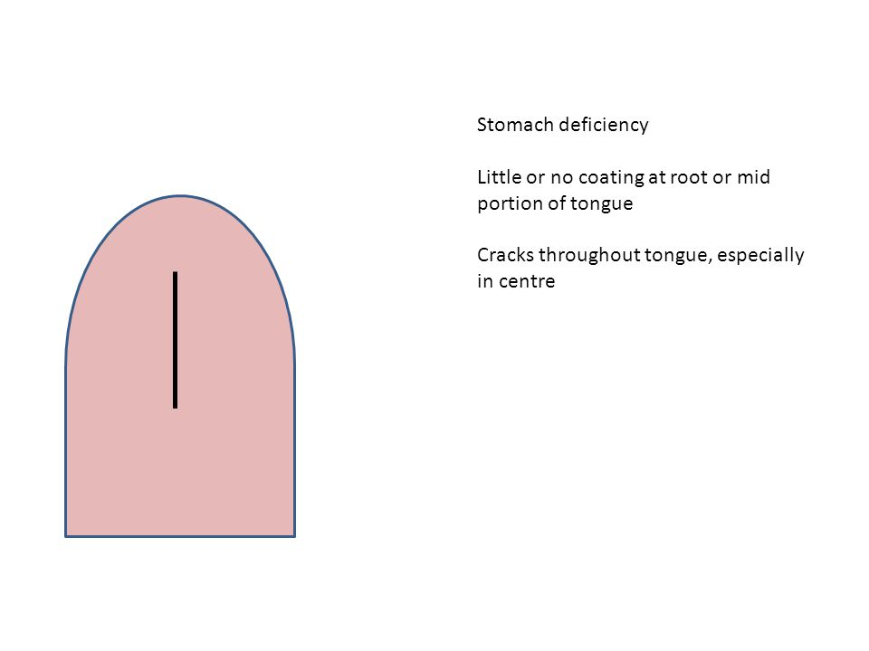 Stomach deficiency Little or no coating at root or mid portion of tongue Cracks throughout tongue, especially in centre