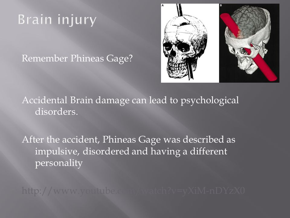 Remember Phineas Gage? Accidental Brain damage can lead to psychological disorders. After the accident, Phineas Gage was described as impulsive, disor