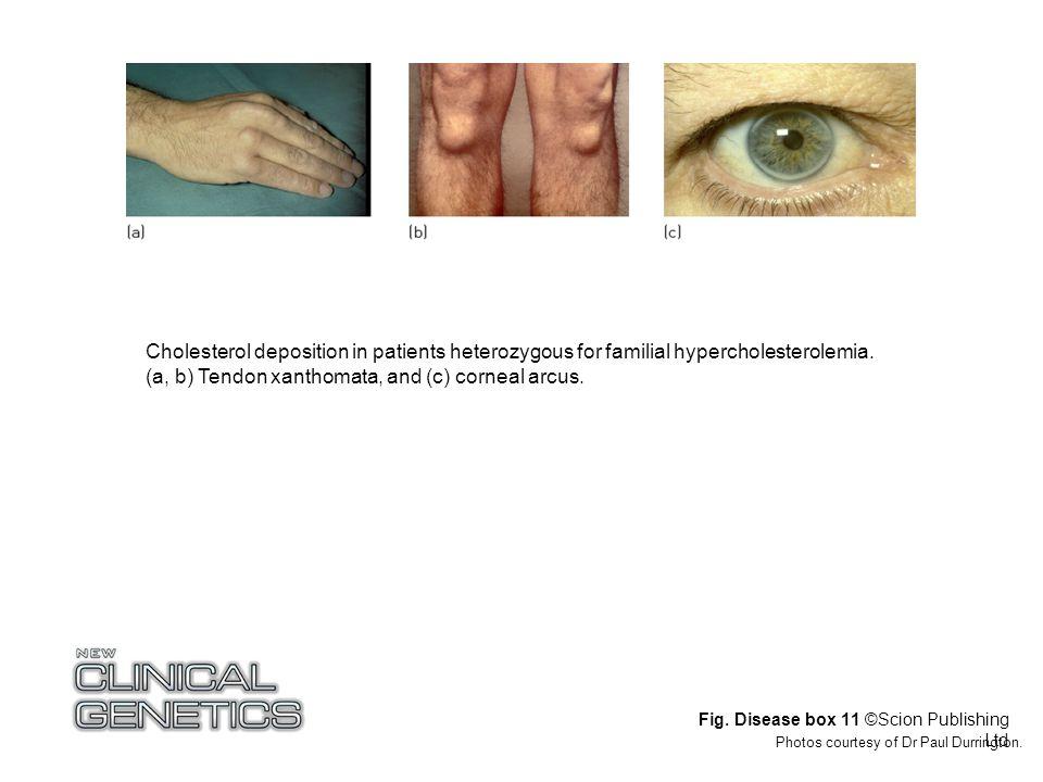 Fig. Disease box 11 ©Scion Publishing Ltd Photos courtesy of Dr Paul Durrington. Cholesterol deposition in patients heterozygous for familial hypercho