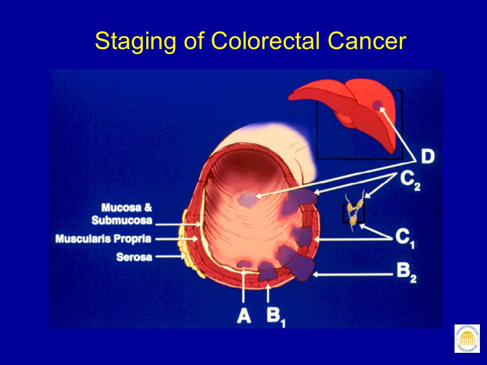 Staging of Colorectal Cancer