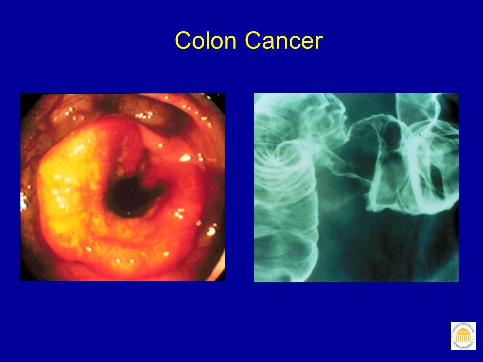 How Does Colorectal Cancer Develop? Janne PA, Mayer RJ. N Engl J Med 2000;342:1960.