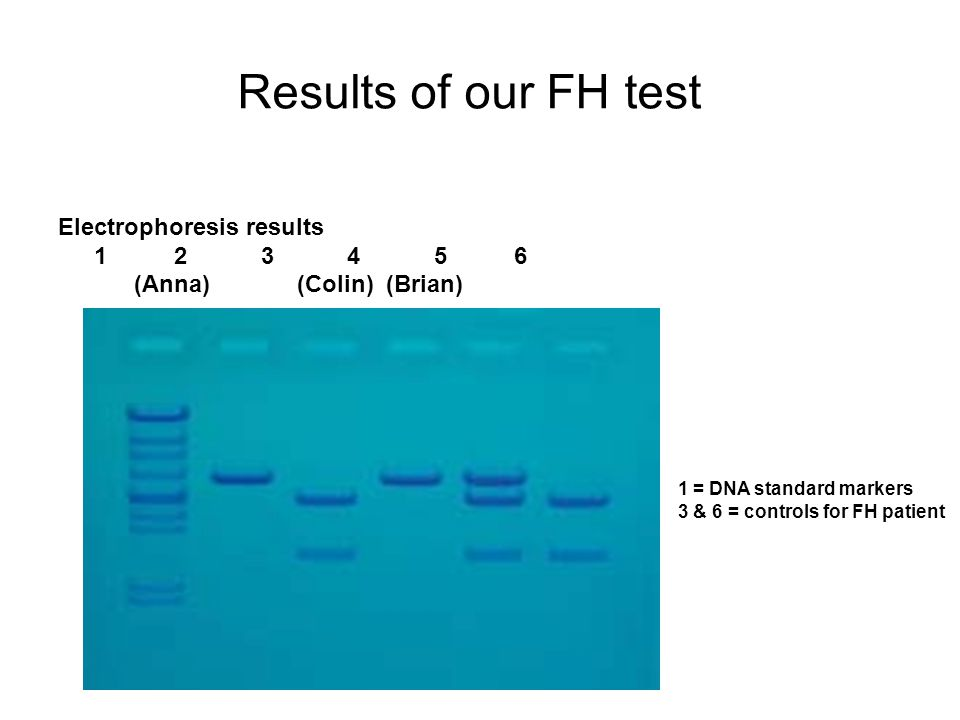 Results of our FH test Electrophoresis results 1 2 3 4 5 6 (Anna) (Colin) (Brian) 1 = DNA standard markers 3 & 6 = controls for FH patient