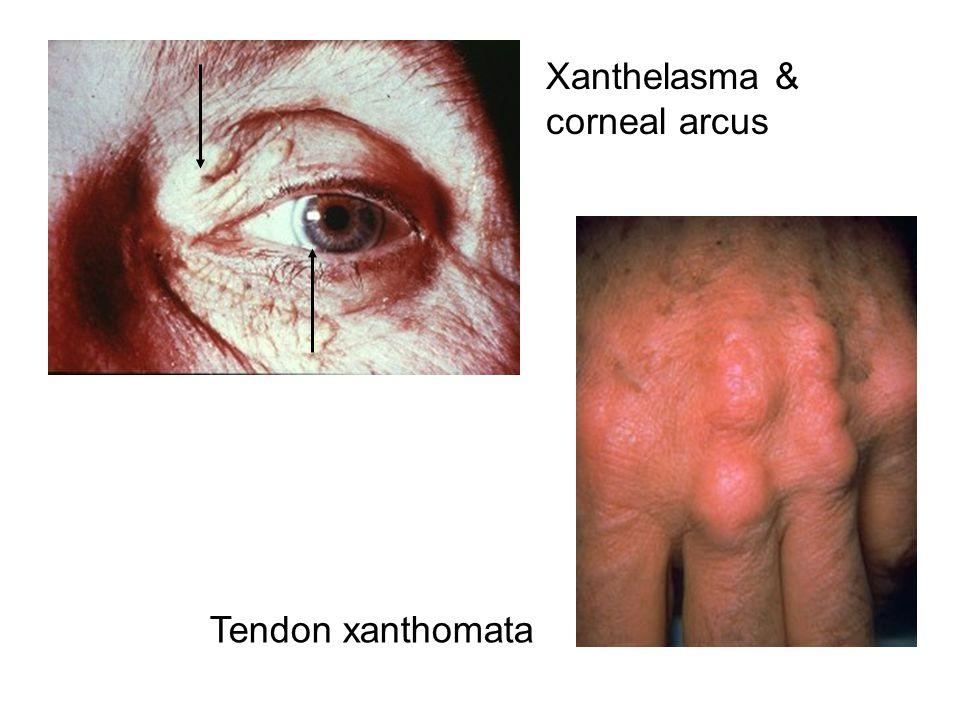 Xanthelasma & corneal arcus Tendon xanthomata