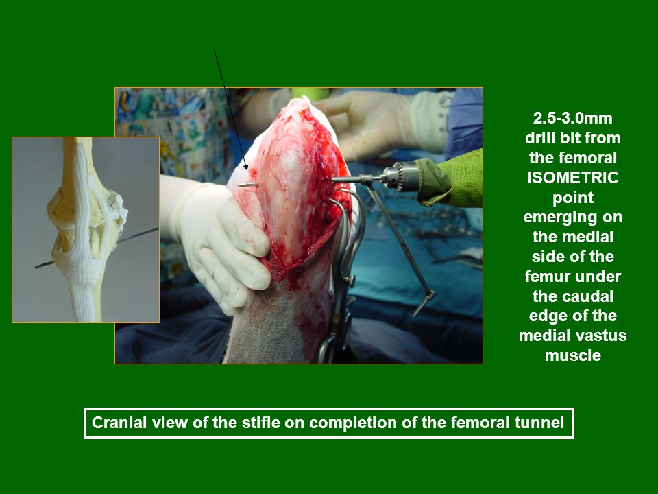 Cranial view of the stifle on completion of the femoral tunnel 2.5-3.0mm drill bit from the femoral ISOMETRIC point emerging on the medial side of the femur under the caudal edge of the medial vastus muscle