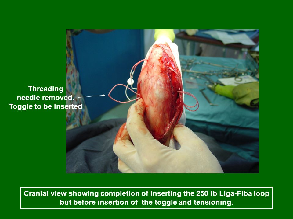 Cranial view showing completion of inserting the 250 lb Liga-Fiba loop but before insertion of the toggle and tensioning. Threading needle removed. To