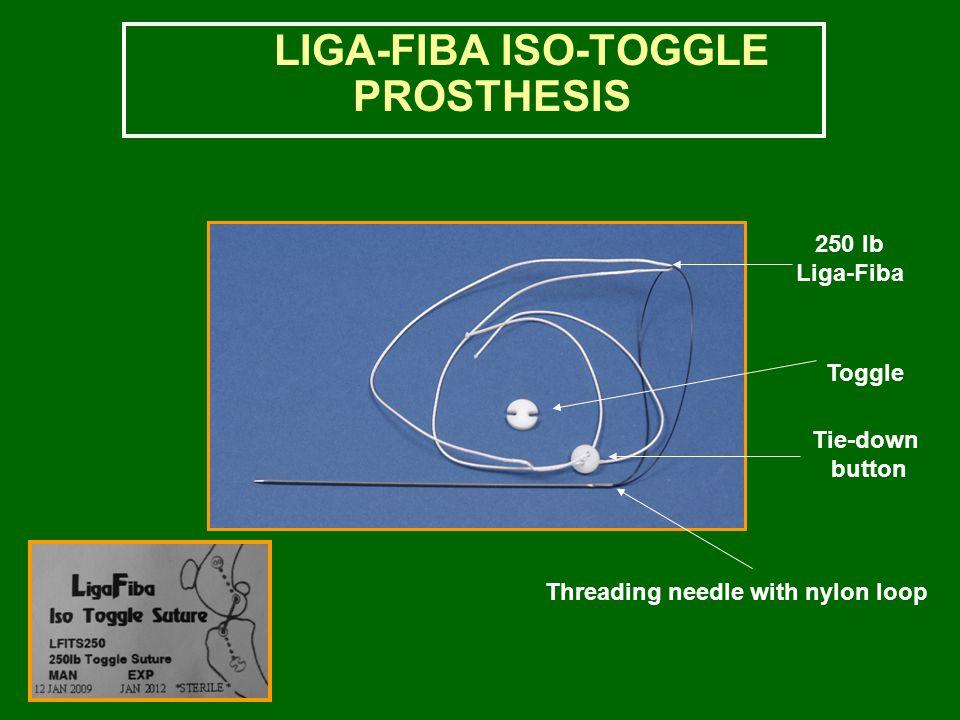 LIGA-FIBA ISO-TOGGLE PROSTHESIS Threading needle with nylon loop Tie-down button Toggle 250 lb Liga-Fiba