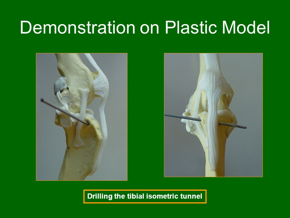 Demonstration on Plastic Model Drilling the tibial isometric tunnel