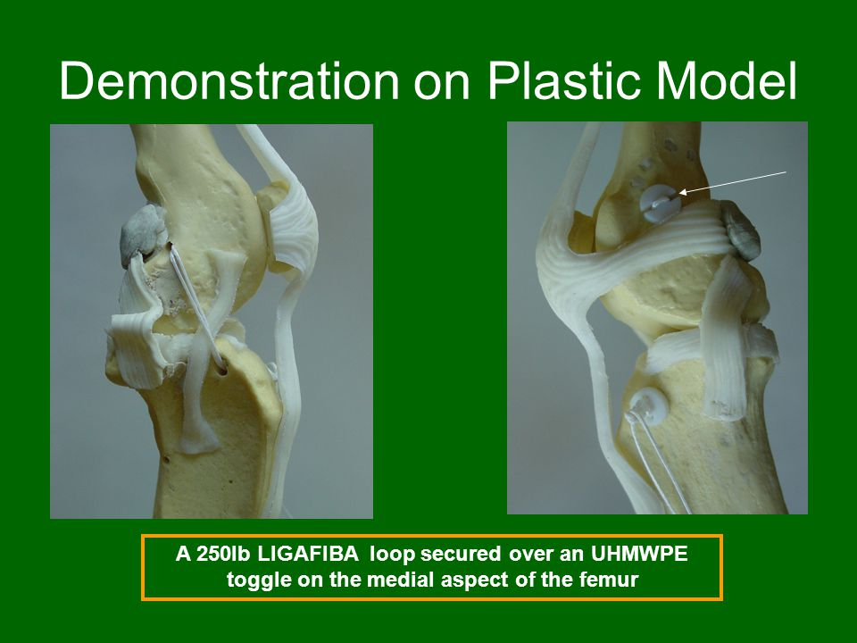 Demonstration on Plastic Model A 250lb LIGAFIBA loop secured over an UHMWPE toggle on the medial aspect of the femur