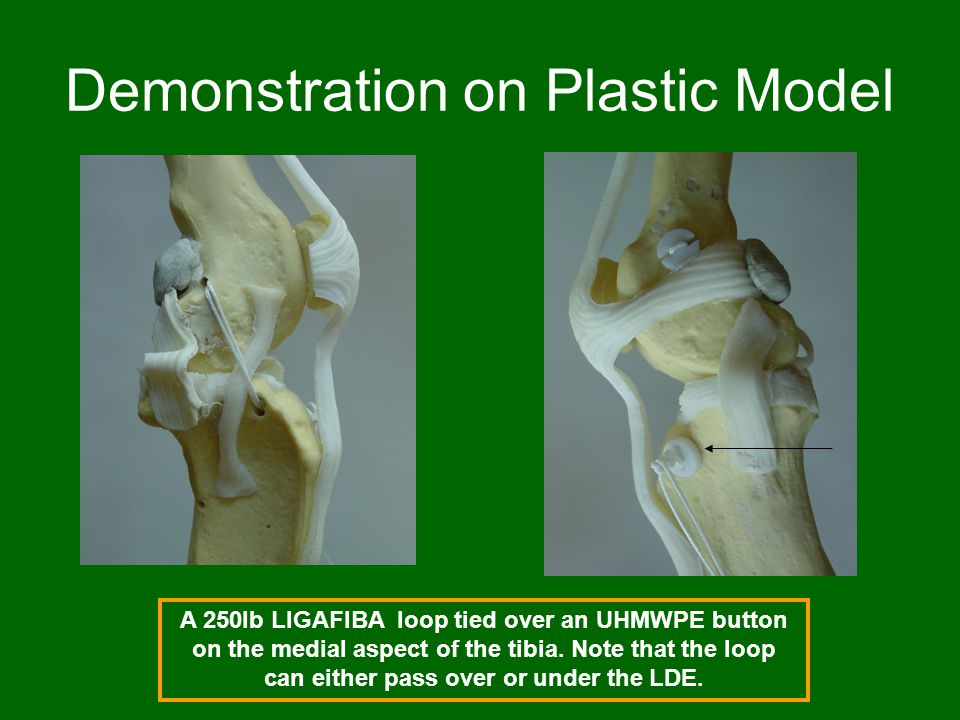 Demonstration on Plastic Model A 250lb LIGAFIBA loop tied over an UHMWPE button on the medial aspect of the tibia. Note that the loop can either pass