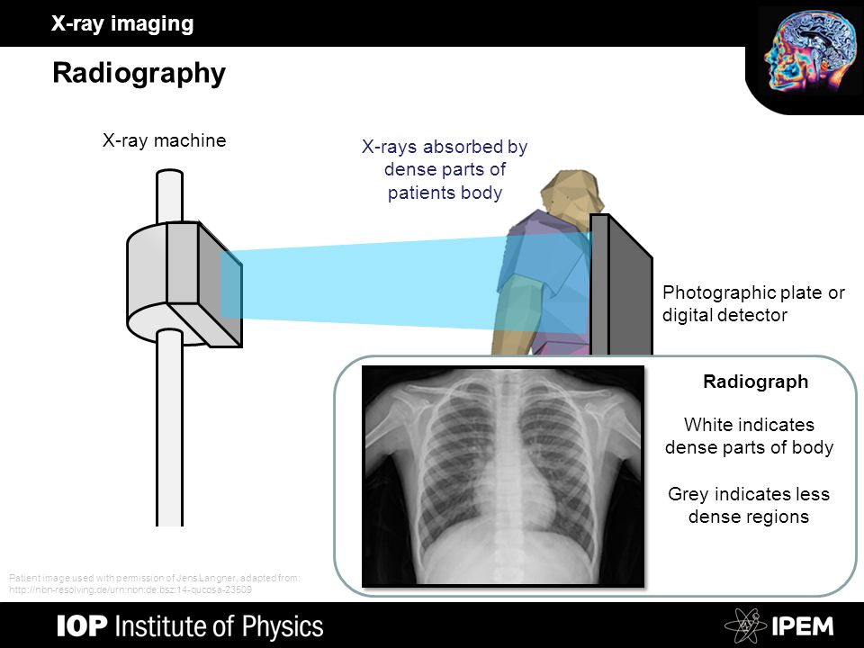 X-ray imaging Radiography Photographic plate or digital detector X-ray machine X-rays absorbed by dense parts of patients body White indicates dense parts of body Grey indicates less dense regions Radiograph Patient image used with permission of Jens Langner, adapted from: http://nbn-resolving.de/urn:nbn:de:bsz:14-qucosa-23509