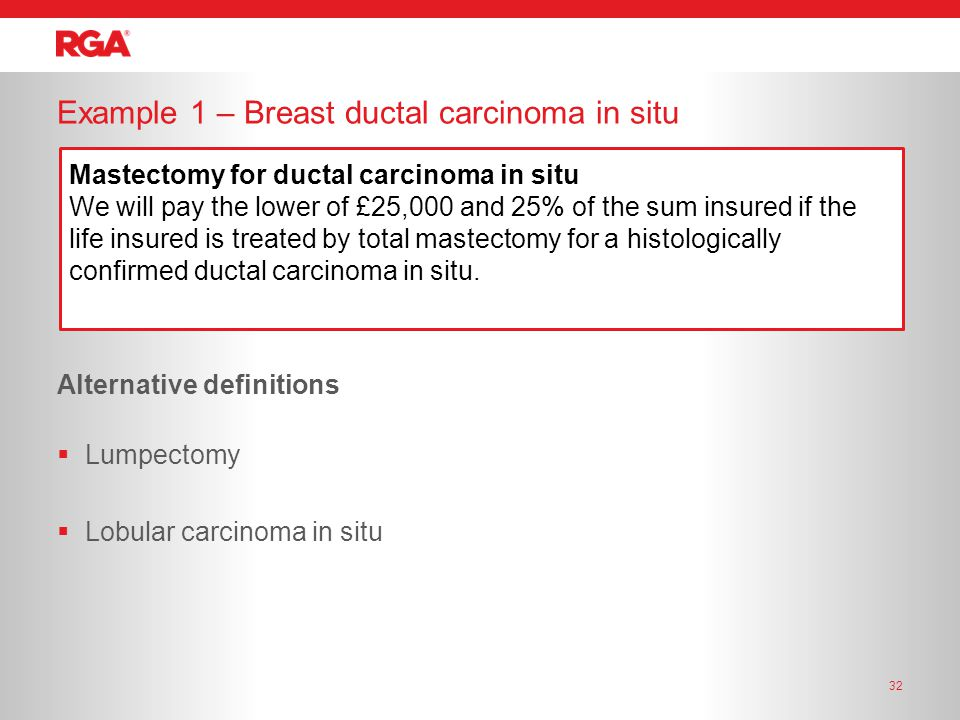 32 Example 1 – Breast ductal carcinoma in situ Alternative definitions  Lumpectomy  Lobular carcinoma in situ Mastectomy for ductal carcinoma in situ We will pay the lower of £25,000 and 25% of the sum insured if the life insured is treated by total mastectomy for a histologically confirmed ductal carcinoma in situ.