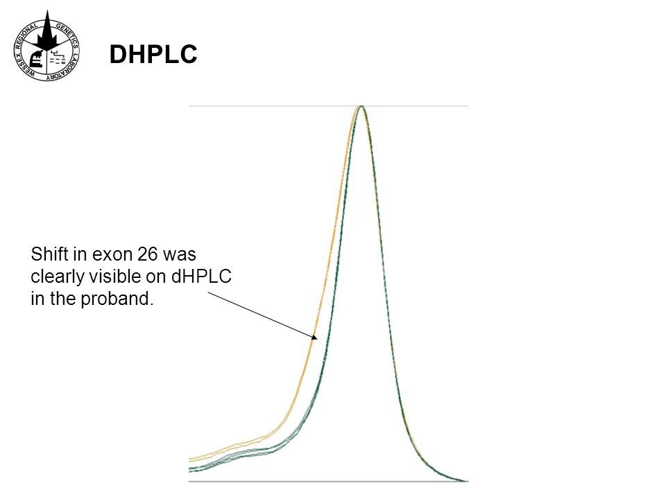 Shift in exon 26 was clearly visible on dHPLC in the proband. DHPLC